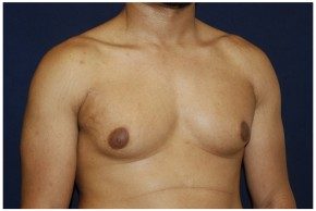 Before Photo - Gynecomastia - Case #4376 - Oblique View
