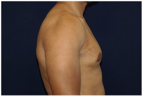 After Photo - Gynecomastia - Case #4376 - Lateral View