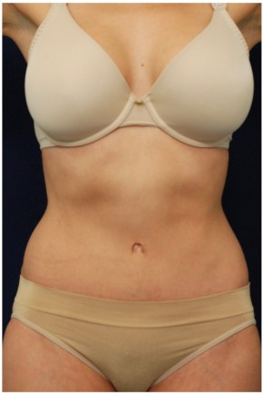 After Photo - Tummy Tuck - Case #4377 - Frontal View