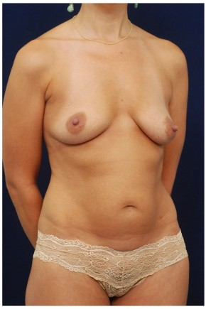 Before Photo - Mommy Makeover - Case #4378 - Oblique View