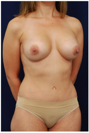 After Photo - Mommy Makeover - Case #4378 - Oblique View