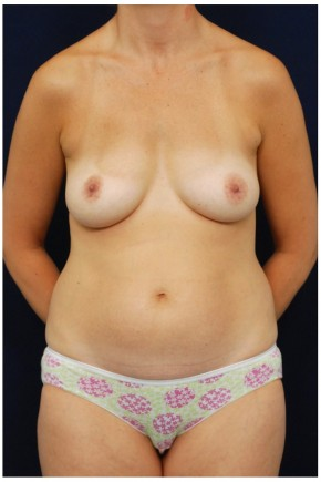 Before Photo - Mommy Makeover - Case #4379 - Frontal View