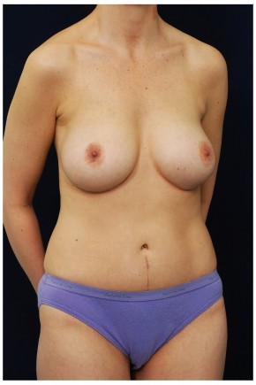 After Photo - Mommy Makeover - Case #4379 - Oblique View