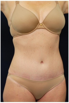 After Photo - Tummy Tuck - Case #4382 - Oblique View