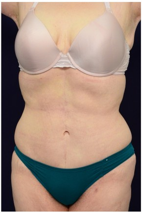 After Photo - Tummy Tuck - Case #4392 - Oblique View