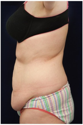 Before Photo - Tummy Tuck - Case #4392 - Lateral View