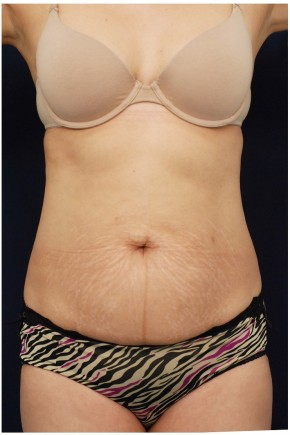 Before Photo - Tummy Tuck - Case #4393 - Frontal View