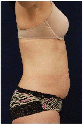 Before Photo - Tummy Tuck - Case #4393 - Lateral View