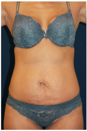 Before Photo - Tummy Tuck - Case #4394 - Frontal View