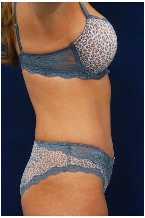 After Photo - Tummy Tuck - Case #4394 - Lateral View