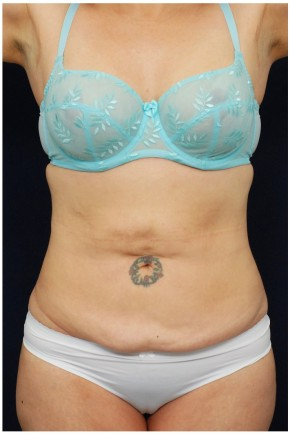 Before Photo - Tummy Tuck - Case #4395 - Frontal View