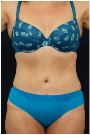 After Photo - Tummy Tuck - Case #4395 - Frontal View