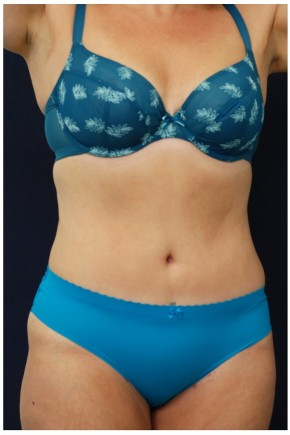After Photo - Tummy Tuck - Case #4395 - Oblique View