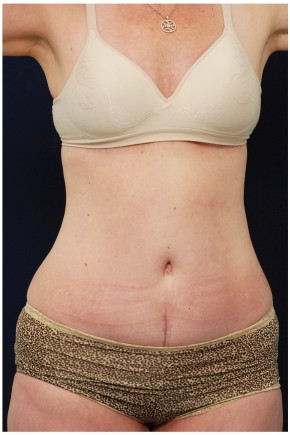 After Photo - Tummy Tuck - Case #4396 - Oblique View