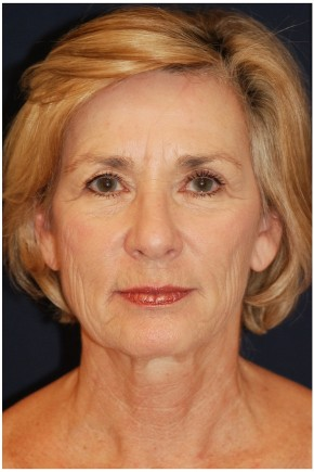 Before Photo - Facelift - Case #4398 - Frontal View