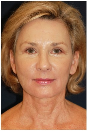 After Photo - Facelift - Case #4398 - Frontal View