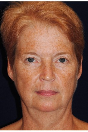 Before Photo - Facial Rejuvenation - Case #4399 - Facelift - Frontal View