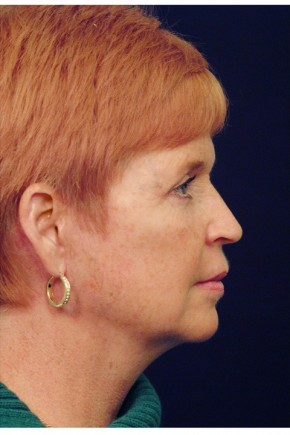 After Photo - Facial Rejuvenation - Case #4399 - Facelift - Lateral View