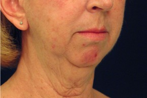 Before Photo - Neck Lift - Case #4400 - Oblique View