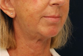 After Photo - Neck Lift - Case #4400 - Oblique View