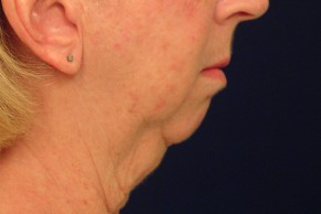 Before Photo - Neck Lift - Case #4400 - Lateral View