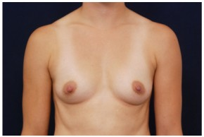 Before Photo - Breast Augmentation - Case #4401 - Frontal View