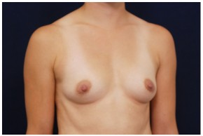 Before Photo - Breast Augmentation - Case #4401 - Oblique View