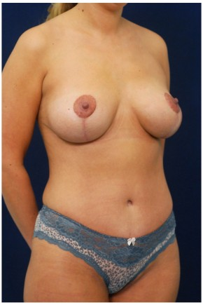 After Photo - Mommy Makeover - Case #4404 - Oblique View