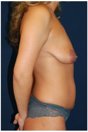 Before Photo - Mommy Makeover - Case #4404 - Lateral View
