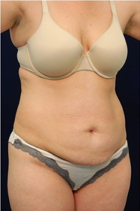 Before Photo - Tummy Tuck - Case #4424 - Oblique View