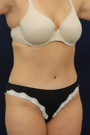 After Photo - Tummy Tuck - Case #4424 - Oblique View