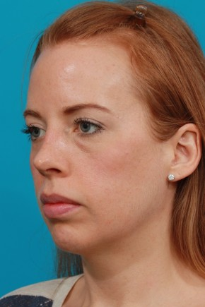 After Photo - Nose Surgery - Case #4445 - Open Septorhinoplasty - Oblique View