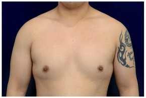 Before Photo - Gynecomastia - Case #4543 - Frontal View