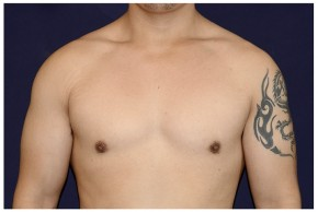 After Photo - Gynecomastia - Case #4543 - Frontal View