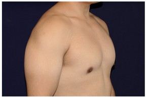 After Photo - Gynecomastia - Case #4543 - Oblique View