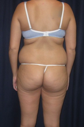 Before Photo - Tummy Tuck - Case #4740 - LipoAbdominoplasty (Prone/Supine) - Posterior View