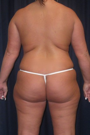 After Photo - Mommy Makeover - Case #4742 - LipoAbdominoplasty with Bilateral Breast Augmentation/ Creasant Mastopexy's - Posterior View