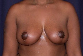 After Photo - Breast Reduction - Case #4745 - Bilateral Breast Reduction - Frontal View