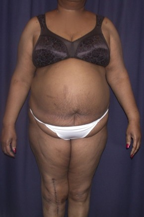 Before Photo - Tummy Tuck - Case #4746 - LipoAbdominoplasty - Frontal View
