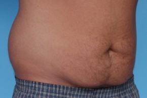Before Photo - Liposuction - Case #4814 - Male Liposuction - Oblique View