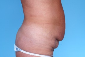 Before Photo - Liposuction - Case #4821 - Abdominoplasty - Oblique View