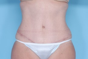 After Photo - Liposuction - Case #4823 - Frontal View