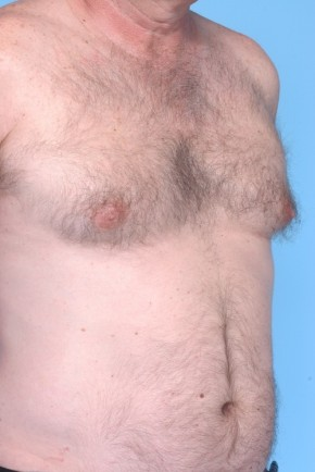 Before Photo - Liposuction - Case #4826 - Frontal View