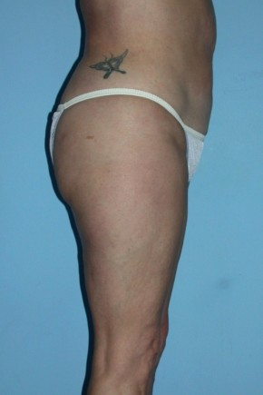 After Photo - Liposuction - Case #4830 - Oblique View