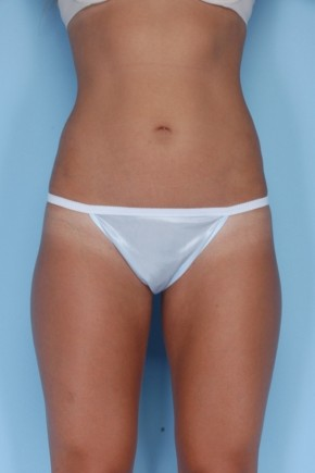 After Photo - Liposuction - Case #4831 - Frontal View