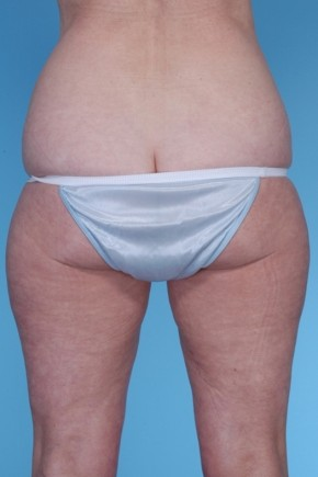 Before Photo - Liposuction - Case #4832 - Posterior View