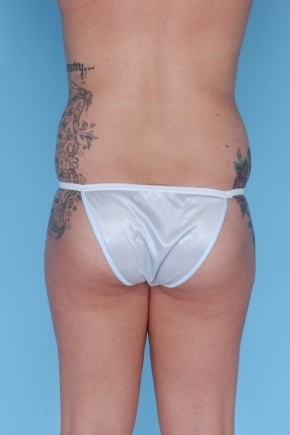 Before Photo - Liposuction - Case #4833 - Posterior View