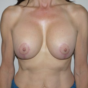 After Photo - Breast Lift - Case #9261 - Augmentation Mastopexy - Frontal View