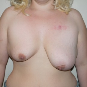 Before Photo - Breast Lift - Case #9263 - Severe breast asymmetry - Frontal View