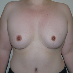 After Photo - Breast Lift - Case #9263 - Severe breast asymmetry - Frontal View
